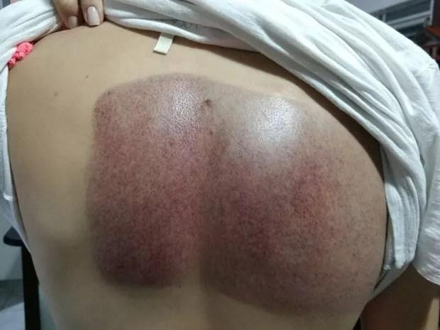 Iohana ficou com um enorme hematoma nas costas (Foto: Iohana Fedlmann/Arquivo pessoal)