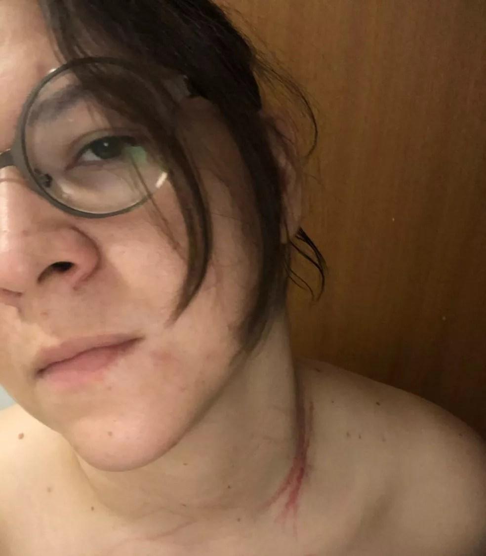 Advogada teve ferimentos no joelho e pescoço — Foto: Divulgação/Arquivo pessoal