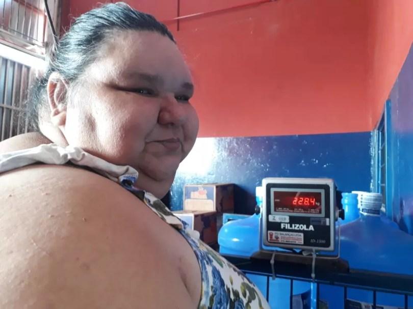 Moradora de Votorantim pesa 230 quilos e espera arrecadar dinheiro para fazer a cirurgia bariátrica (Foto: Arquivo pessoal )