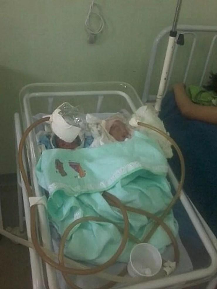 Bebês ficaram internados com máscaras de garrafa PET em Jutaí — Foto: Arquivo Pessoal