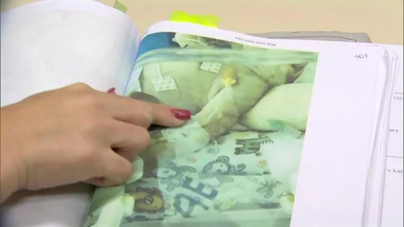 Bebês aparecem em fotos com braços machucados (Foto: Reprodução / TV Globo)