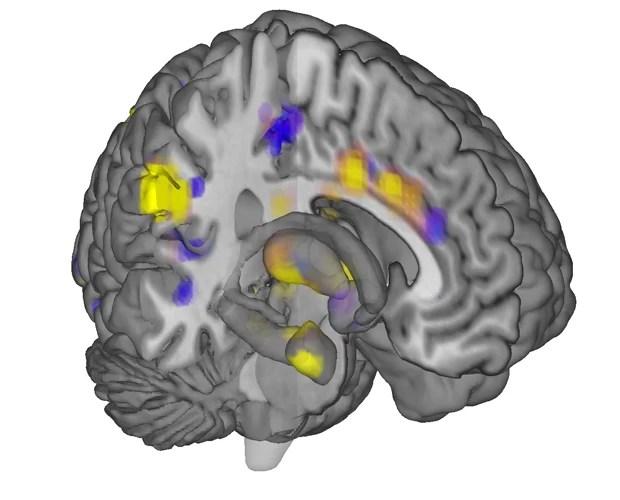 Sinais da dor no cérebro seguem padrão, de acordo com cientistas (Foto: Tor Wager/Universidade do Colorado/AP)