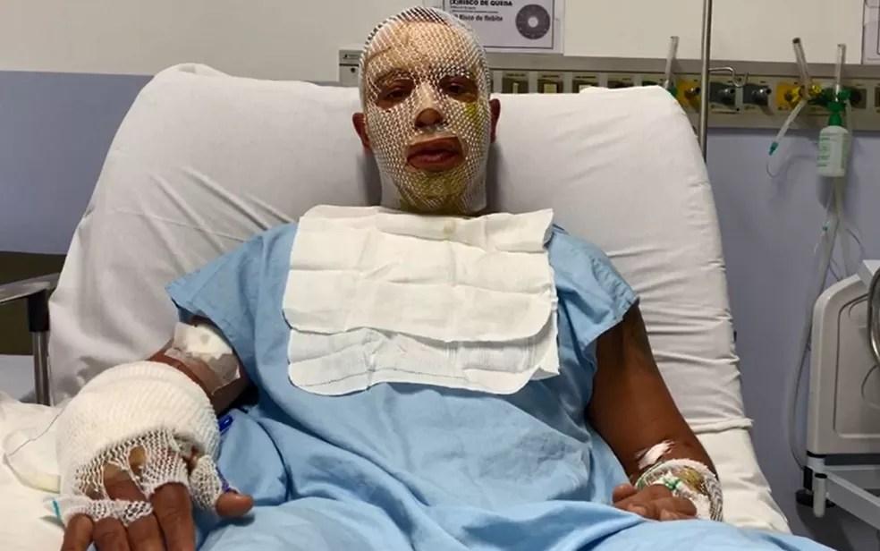 Rogério Lins, prefeito de Osasco, se recupera de acidente com fogueira em festa junina — Foto: Divulgação/Prefeitura de Osasco