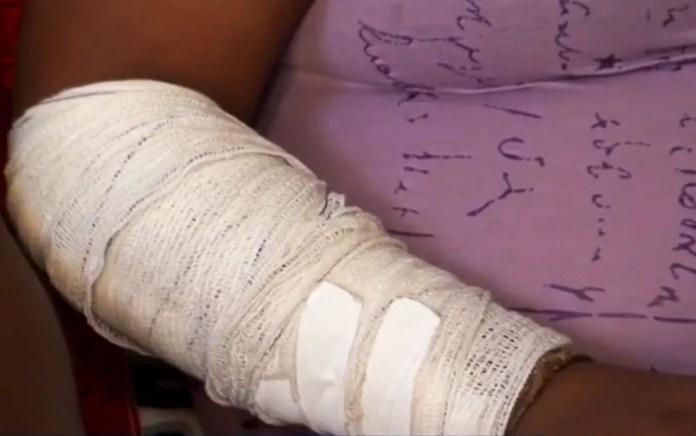 Ainda com marcas pelo corpo, Elizabeth Conceição disse que ela e as outras vítimas foram surpreendidas pelo veículo em Ilhéus — Foto: Reprodução/TV Santa Cruz