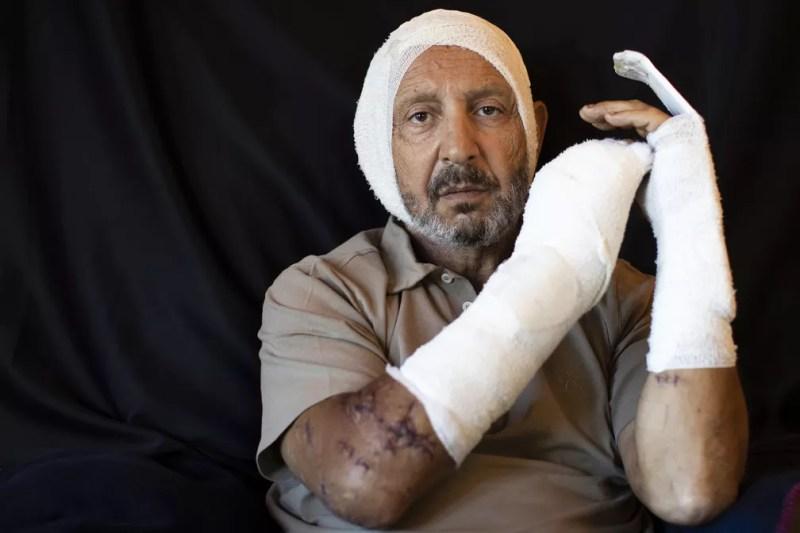 Rainier Jreissati, 63, empresário, ferido em sua casa durante explosão do dia 4 de agosto em Beirute, Líbano — Foto: Hassan Ammar/AP