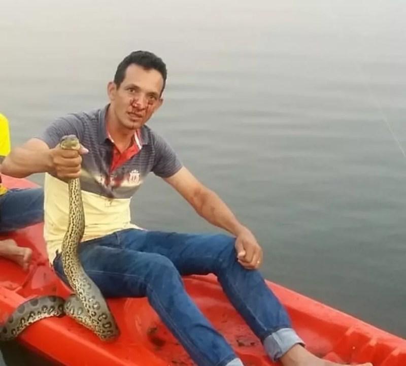 Empresário estava pescando quando foi atacado pela cobra (Foto: Arquivo Pessoal)