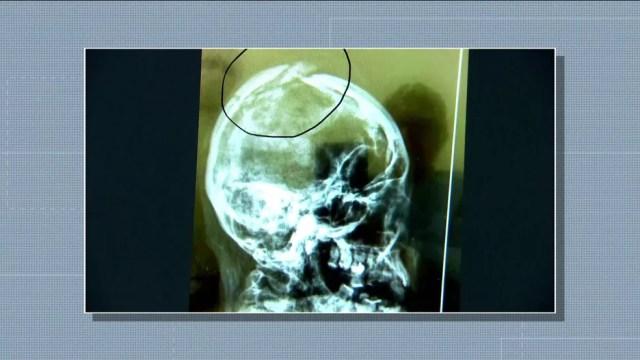 Imagem do crânio da assistente social Márcia Miranda mostra que ela levou pancada na cabeça  — Foto: Reprodução TV Globo