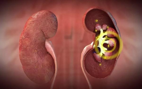 Arte mostra formação de cálculo renal — Foto: Reprodução/TV Globo