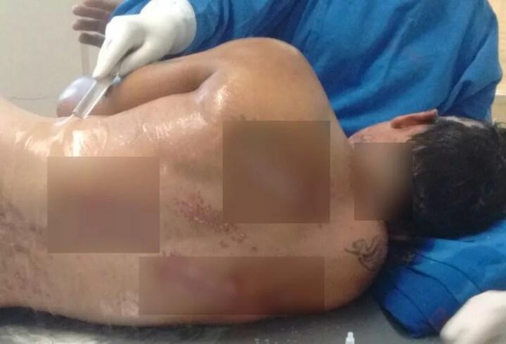 Homem sobreviveu a choque de 30 mil volts, diz família em Campo Grande - MS — Foto: João Paulo Souza/Arquivo Pessoal