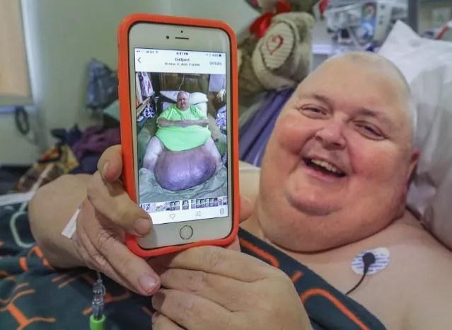 Roger mostra o tumor de quase 60 quilos