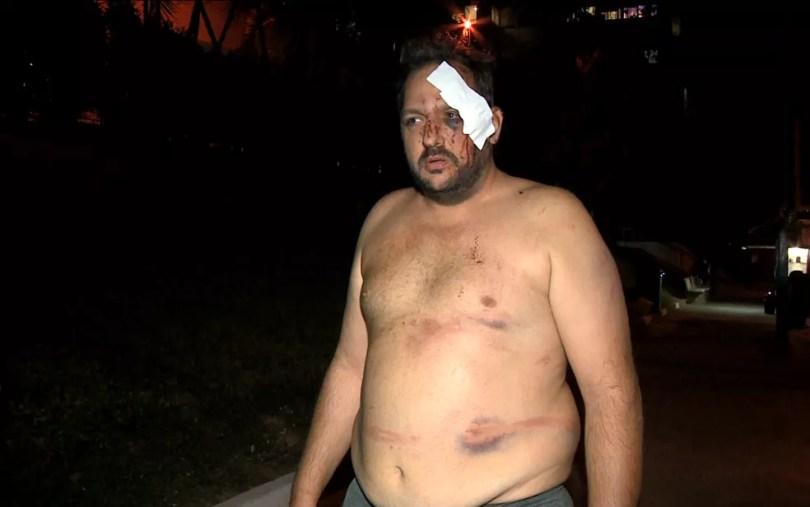 Torcedor do Guarani ficou ferido e com hematomas após ser agredido por policiais em Campinas, antes do jogo contra o Coritiba pela série B do Campeonato Brasileiro. (Foto: Reprodução/EPTV)