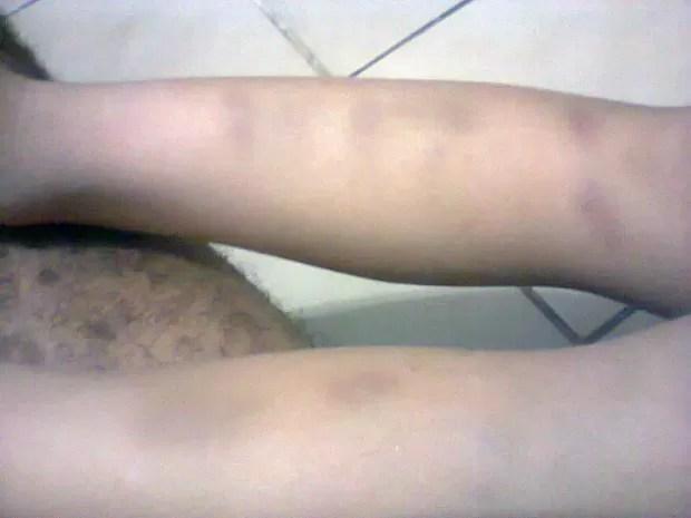 Criança é agredida em escola de Praia Grande (Foto: Silvia Maria de Oliveira/Arquivo Pessoal)
