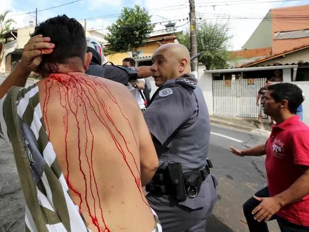 Homem foi ferido em ação da polícia para dispersar confusão de manifestantes em frente ao prédio onde vive ex-presidente Lula em São Bernardo do Campo (SP) (Foto: Paulo Whitaker/Reuters)