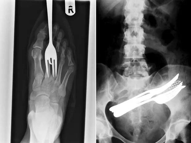 À esquerda, raio-X mostra garfo fincado no pé de um paciente. À direita, imagem do abdômen mostra dois garfos, uma caneta e uma escova de dentes que foram engolidas por um paciente (Foto: Barcroft Media/Getty Images)