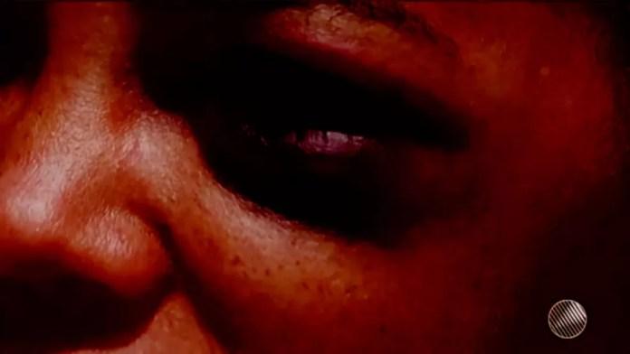 Mulher disse ter levado socos no rosto na Bahia (Foto: Reprodução/TV Santa Cruz)
