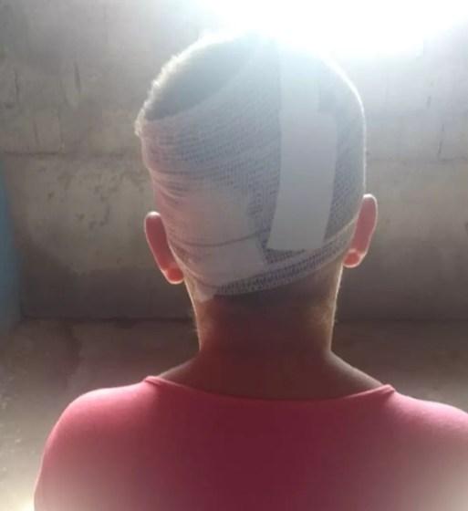Dona de casa ainda se recupera da agressão que sofreu. Ela teve quase que a metade de todo o couro cabeludo arrancado à faca — Foto: Ediana Miralha/Inter TV Cabugi
