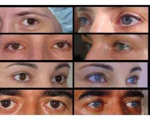 Permanent Eye Color Change Surgery Cost Cosmetics Pictranslator