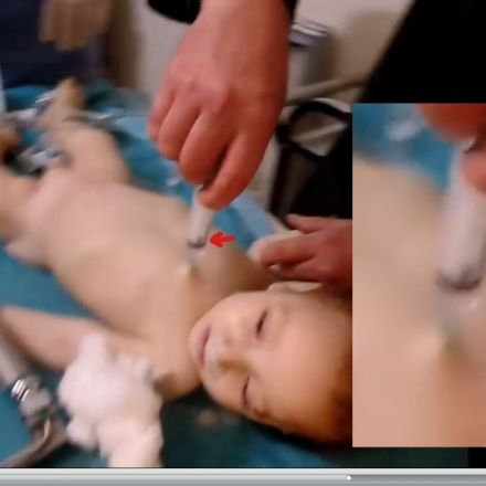 White Helmets Movie: Updated Evidence From Swedish Doctors Confirm Fake 'Lifesaving' and Malpractices on Children