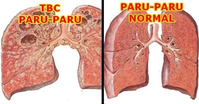 5 Cara Mengobati TBC Gejala, Penyebab dan Bahayanya