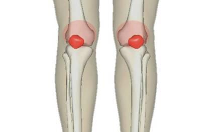 腳骨愛軟Q,教你膝蓋保養之道!