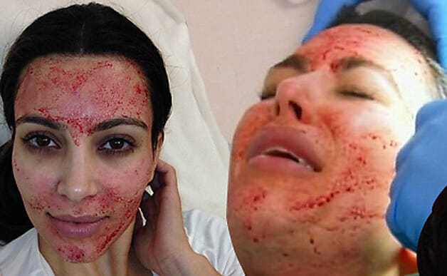 Kim Kardashian: Vampire Facial