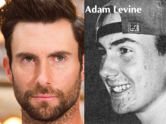 ClioMakeUp-brufoli-acne-rimedi-sconfiggere-star-celebrity-vip-adam-levine.jpg.001