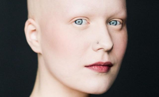ClioMakeUp-Katie-Hale-Alopecia_13
