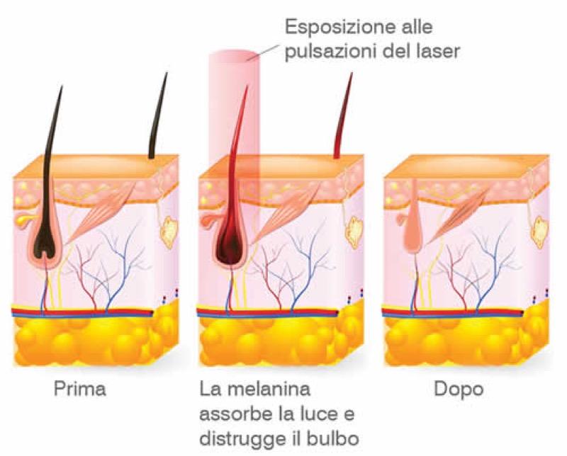 cliomakeup-depilazione-laser-6
