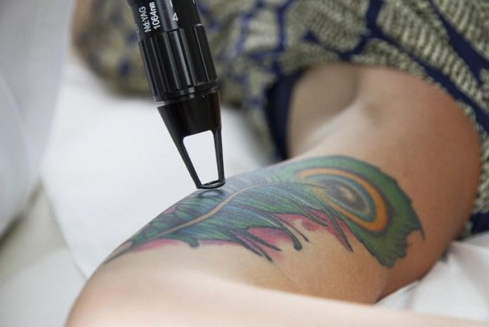 ClioMakeUp-Come-Togliere-Un-Tatuaggio_16