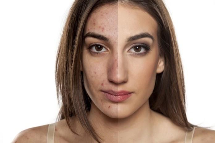 macchie da acne rimedi