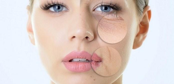 ClioMakeUp-inquinamento-male-pelle-detox-pelle-disidratata