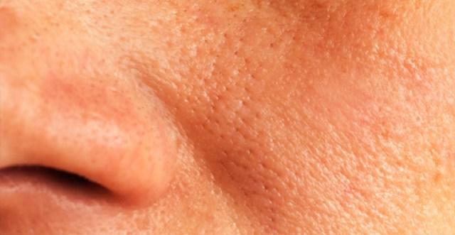 ClioMakeUp-pori-dilatati-rimedi-prodotti-consigli-come-fare
