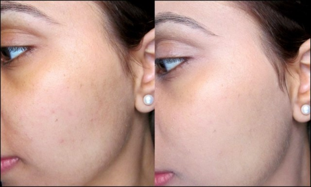 ClioMakeUp-cicatrici-da-acne-come-coprirle-trucchetti-segreti-step-10