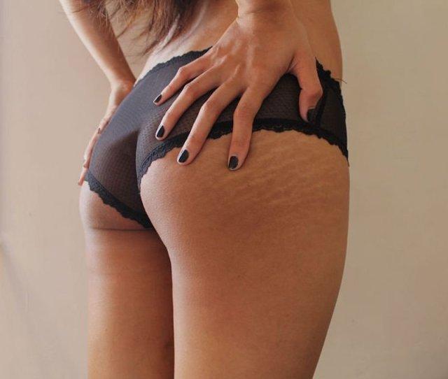 cliomakeup-tatuaggi-eliminare-smagliature-1