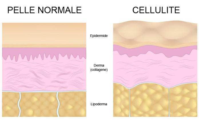 Cliomakeup-ritenzione-idrica-cellulite-rimedi-18