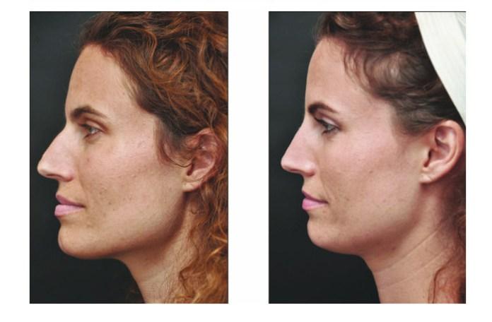 cliomakeup-chirurgia-estetica-non-invasiva