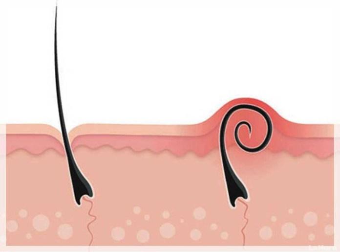ClioMakeUp-depilazione-peli-incarniti-rimedi-pelle-liscia-ceretta-rasoio-epilatore-scrub-9