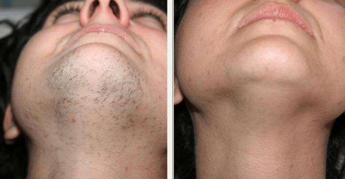 cliomakeup-depilazione-viso-6