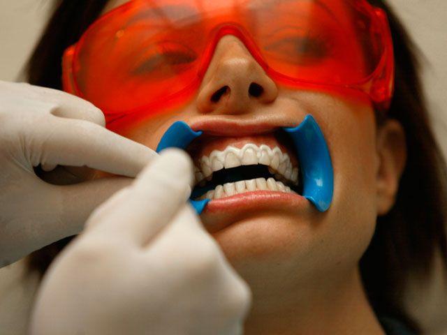 cliomakeup-luci-led-sbiancanti-5-dentista