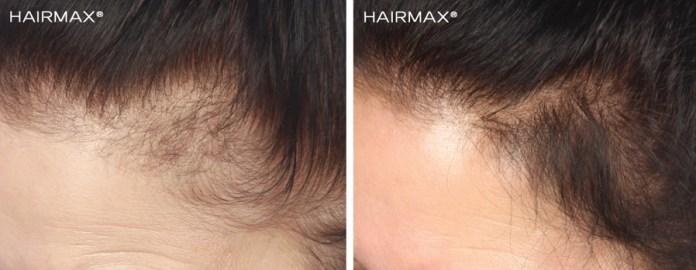 cliomakeup-perdita-capelli-rimedi-4