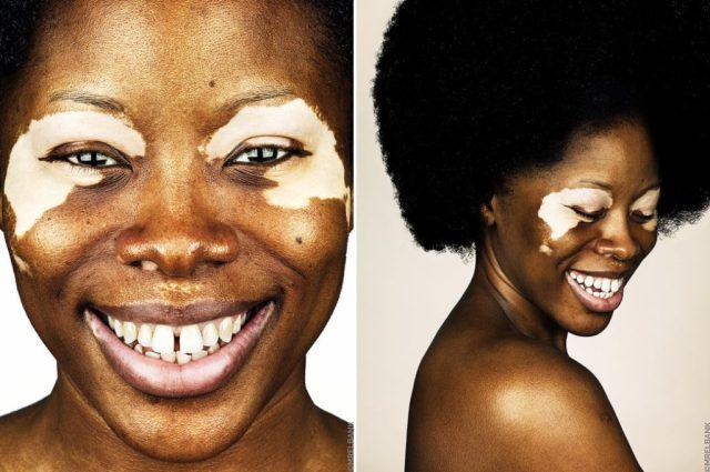 cliomakeup-brock-elbank-vitiligo-1