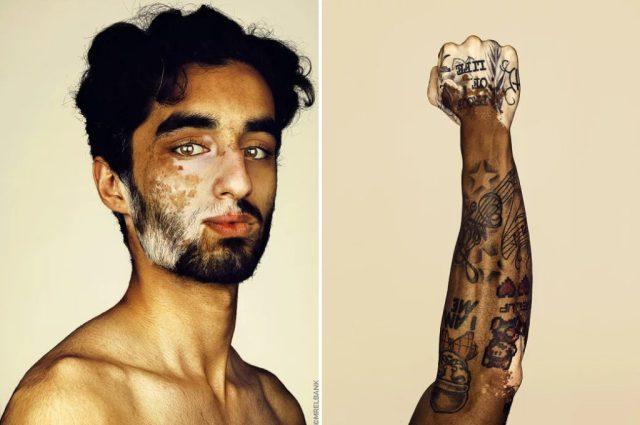 cliomakeup-brock-elbank-vitiligo-5