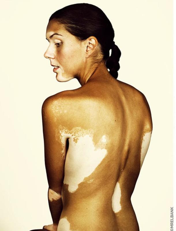 cliomakeup-brock-elbank-vitiligo-10