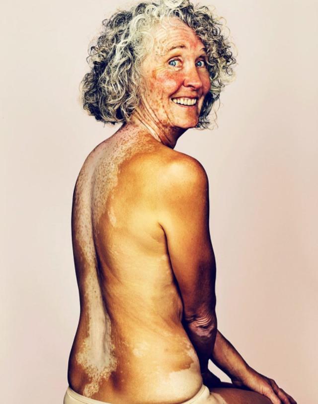cliomakeup-brock-elbank-vitiligo-12
