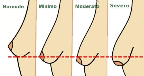 ClioMakeUp-seno-cadente-cause-rimedi-6
