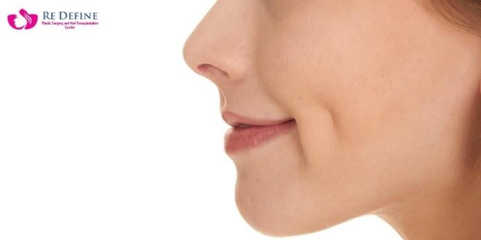 cliomakeup-chirurgia-estetica-trend-fossette-riduzione-capezzolo-labbra-11