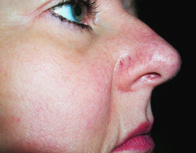 cliomakeup-capillari-rotti-naso-1-trucco-rimedi