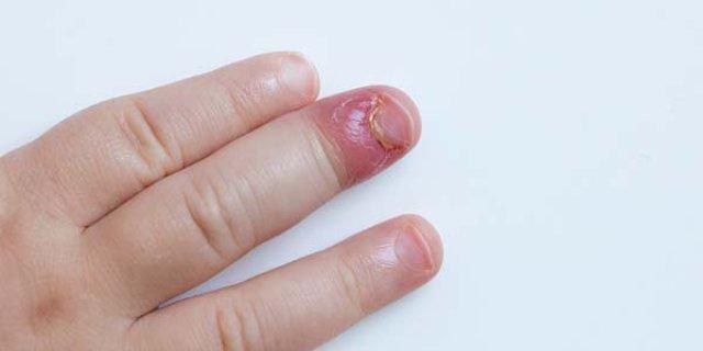 cliomakeup-come-smettere-di-mangiarsi-le-unghie-1