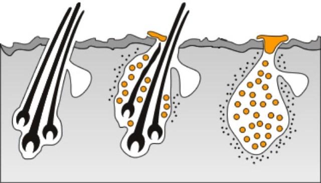 cliomakeup-capelli-grassi-rimedi-pre-shampo-2-follicolite