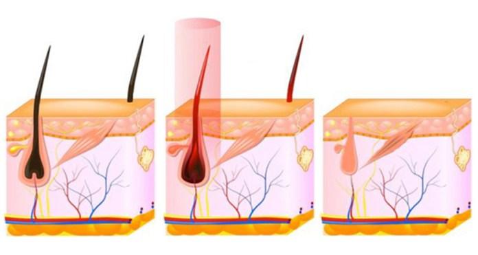 cliomakeup-epilazione-laser-definitiva-cosa-sapere-7